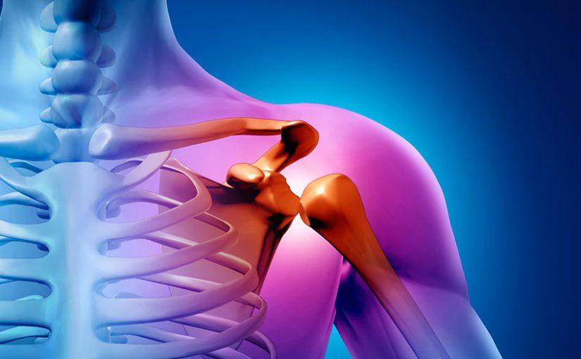 Массивные повреждения вращательной манжеты плеча