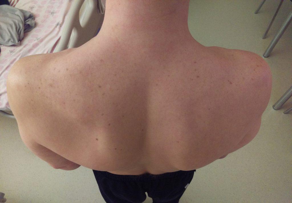 выраженная гипотрофия подостной мышцы слева обусловлена нарушением ее иннервации надлопаточным нервом