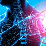 Тугоподвижность плечевого сустава.  Адгезивный капсулит плечевого сустава