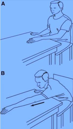 Рабилитация плечевой сустав