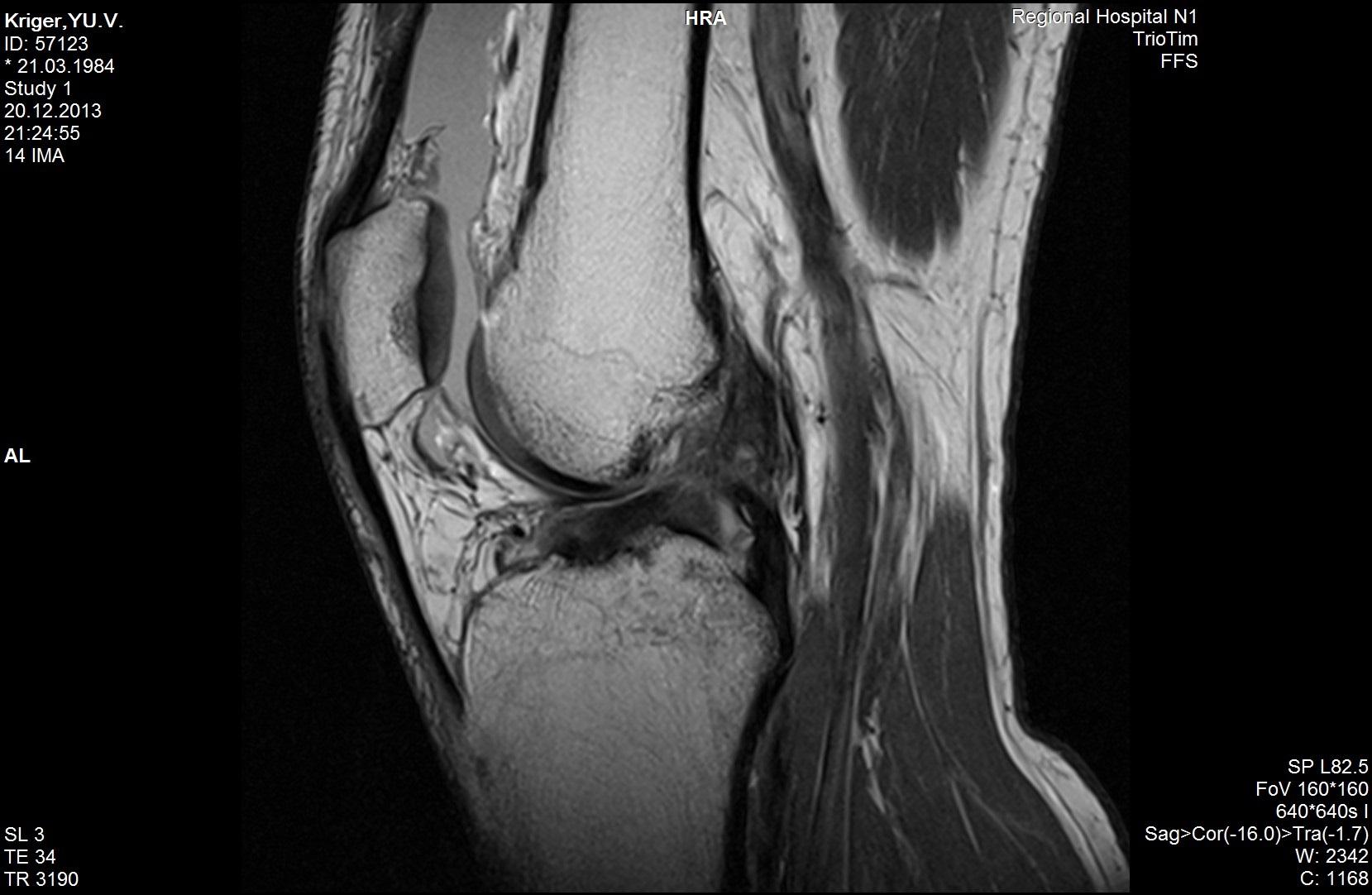 МРТ коленного сустава. ПКС разорвана