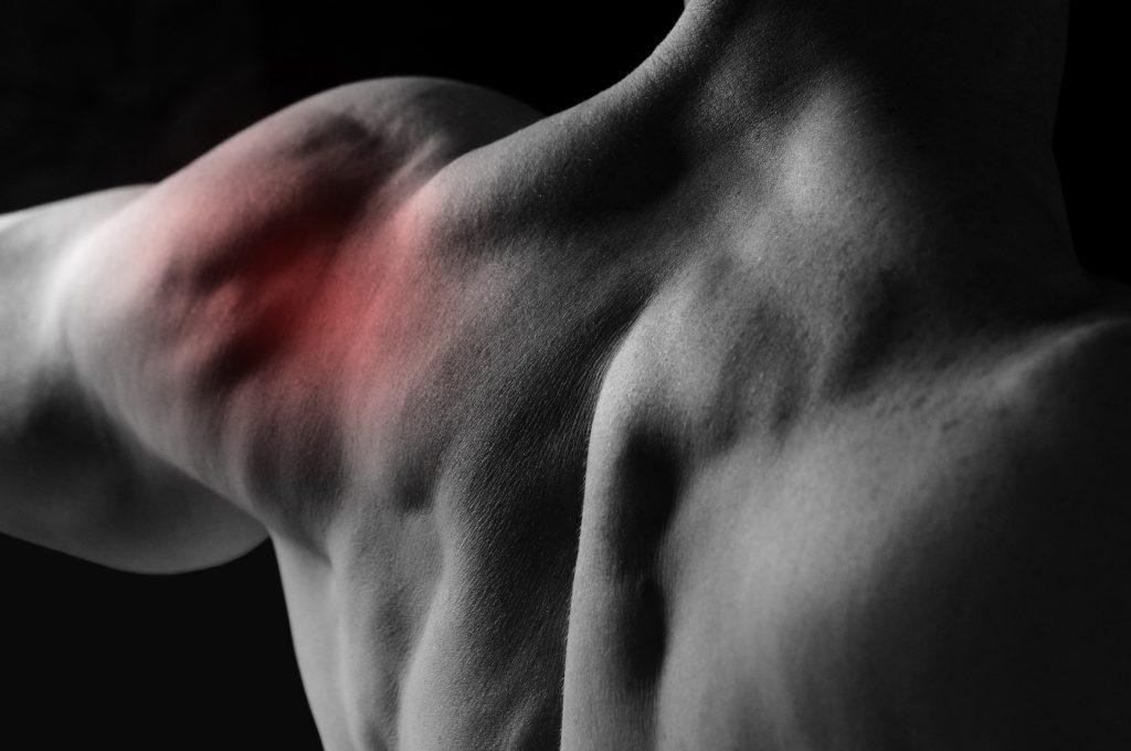 Разрыв сухожилия бицепса. Частичный отрыв дистального сухожилия головки бицепса