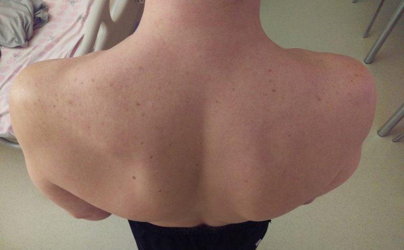 Кисты в плечевом суставе капли валентина дикуля для суставов