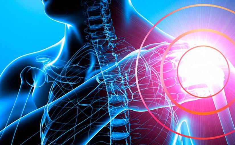Тугоподвижность сустава википедия суставы шеи анатомия