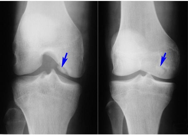Болезнь кенига в коленных суставах артроскопическое лечение плечевого сустава в кишиневе