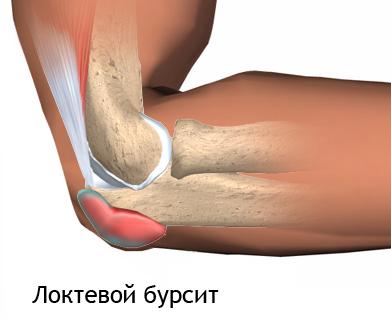 Изображение - Операция при бурсите локтевого сустава bursit-loktya1