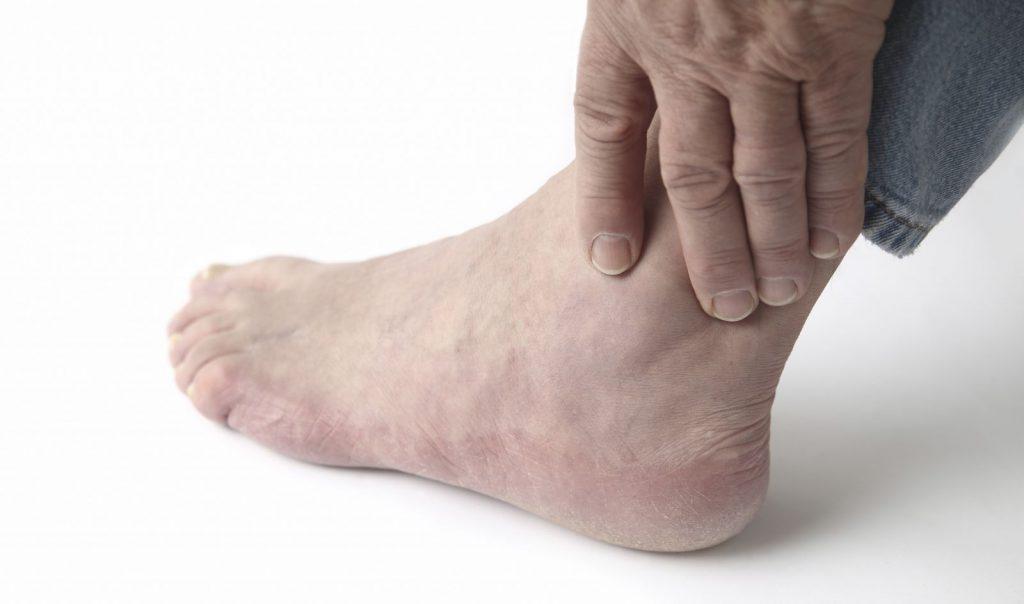 Лечение остеофитов голеностопного сустава народными средствами