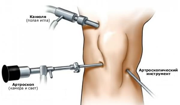 Гипертрофия и артроскопическое рассечение медиопателлярной складки коленного сустава
