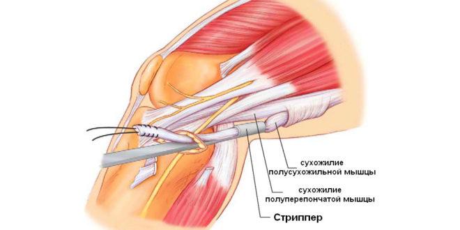 Разрыв мозговой связки коленного сустава гирудотерапия при артрозе плечевого сустава
