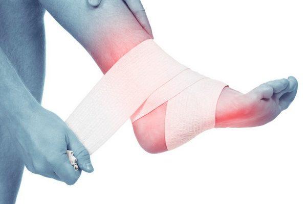 Свободные и внутрисуставные хондромные тела в коленном суставе