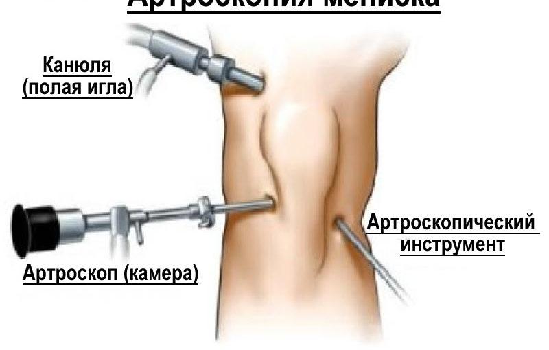 Минис коленого сустава расшрен чем и как лечить гель для суставов для животных