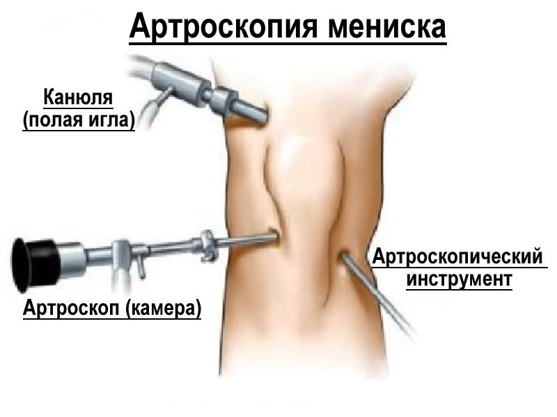 Разрыв заднего рога латерального мениска коленного сустава
