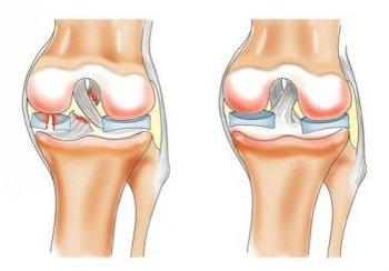 Разрыв мениска коленного сустава цена анотомия человека суставы